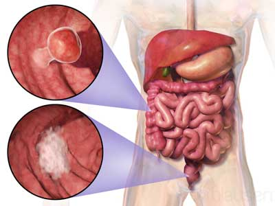diagram of the digestive tract including colon cancer and rectum cancer growth