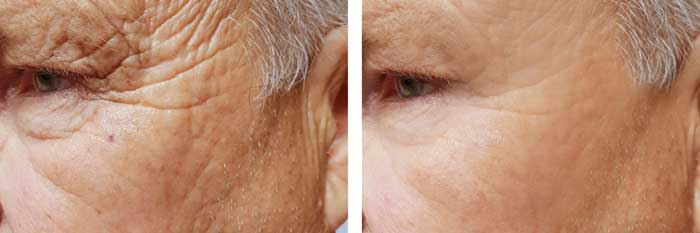 A photo of showing someones wrinkles faded after using complete collagen